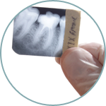 Buckhead-Dental-Associates-Restorative-thumb